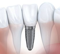 drawing of dental implant