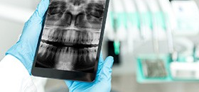 Oral x-rays on portable tablet