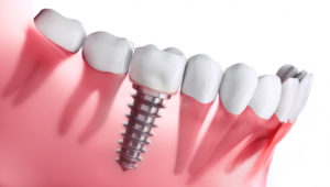 cross-section of dental implant